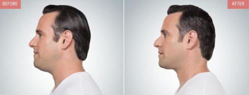 kybella-before-after-boise1