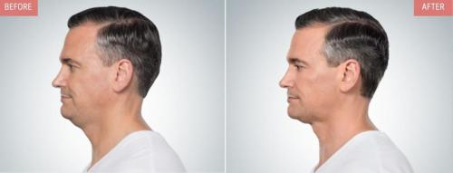 kybella-before-after-boise3