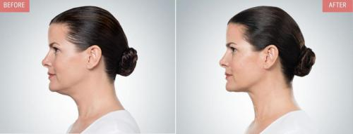 kybella-before-after-boise4