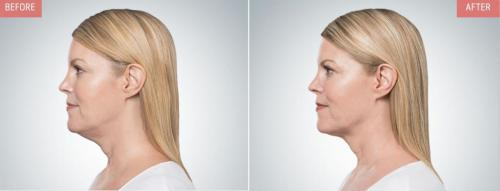 kybella-before-after-boise6