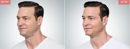 kybella-before-after-boise8