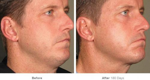 before_after_ultherapy_results_full-face16