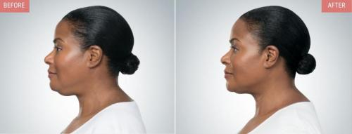 kybella-before-after-boise2