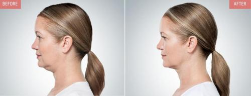 kybella-before-after-boise5