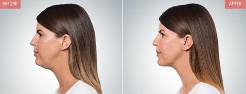 kybella-before-after-boise7